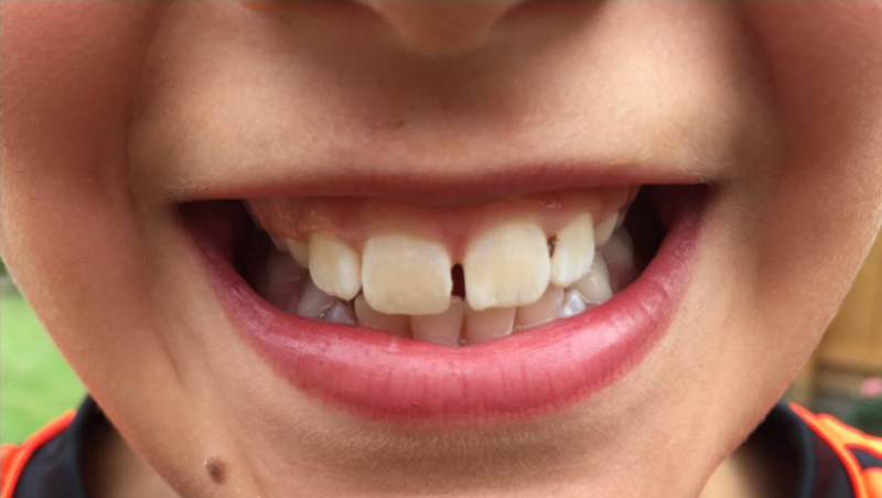 Chipped Tooth 01 02