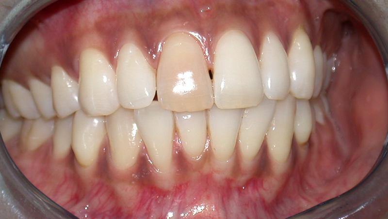Single Tooth Whitening 01 01