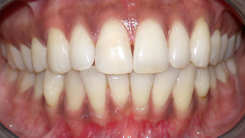 Single Tooth Whitening 01 02